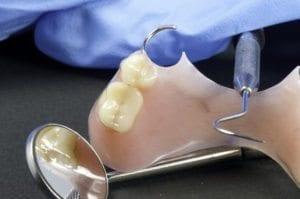 Dental Bridge by dentist in Denver