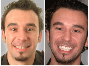 Is a smile makeover really worth it