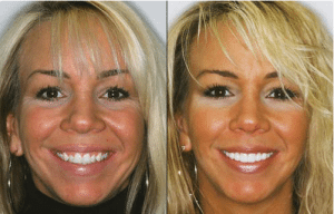 Lone Tree CO dentist shows Dental Veneers Before and After pictures