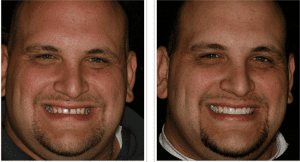 Denver Dentist shows Dental Veneers Before and After Pictures