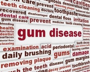 gum-disease-denver-dental-services