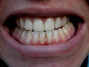 Teeth Grinding Bruxism Treatment by dentist in Denver and Lone Tree