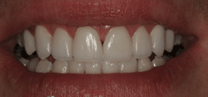 Denver dentist shows Dental Veneers After Photo