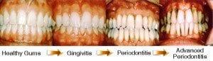 Progression-of-gum-disease