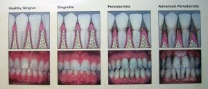 Denver, CO dentist explains periodontal disease