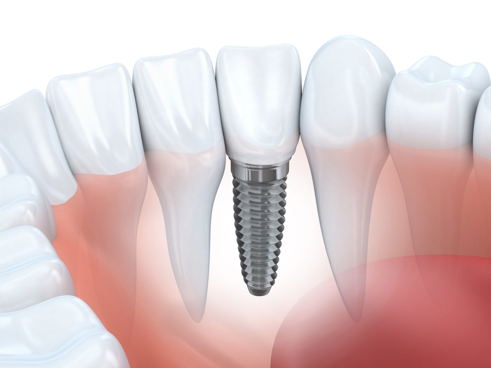 dental implants denver CO dentist