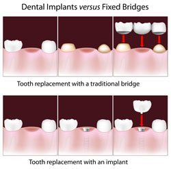 dental implants lone tree