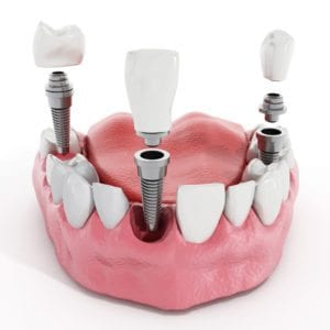 dental implants single Denver Dentist