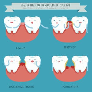 an illustration of the stages of gum disease