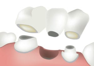 digital illustration of a dental bridge