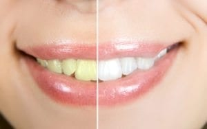 Cosmetic Dentist Denver CO Before and After Teeth Whitening