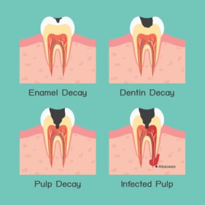 digital image of stages of tooth decay