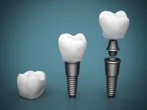 dental implants on blue gradient background