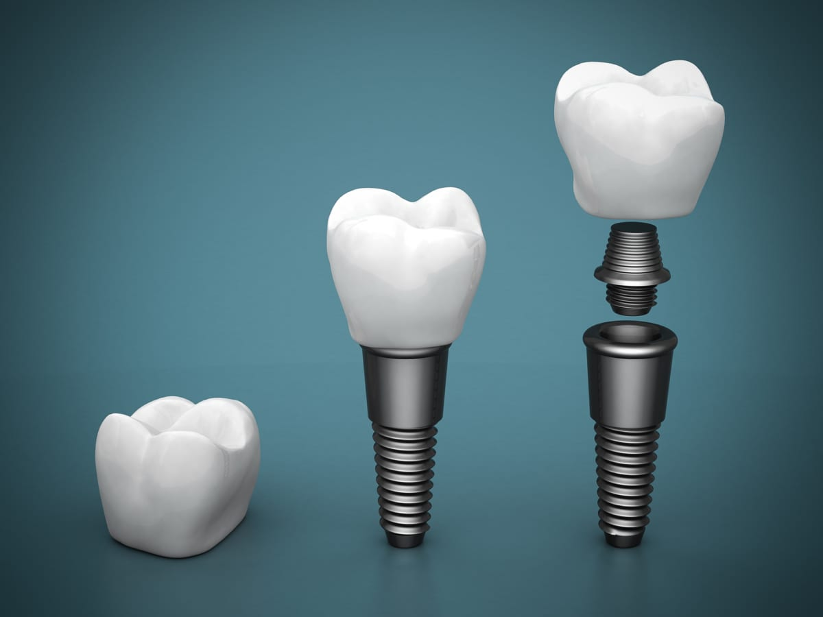 dental implants on blue gradient background