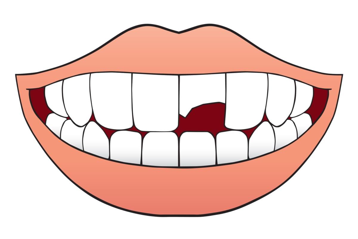 digital illustration of broken tooth
