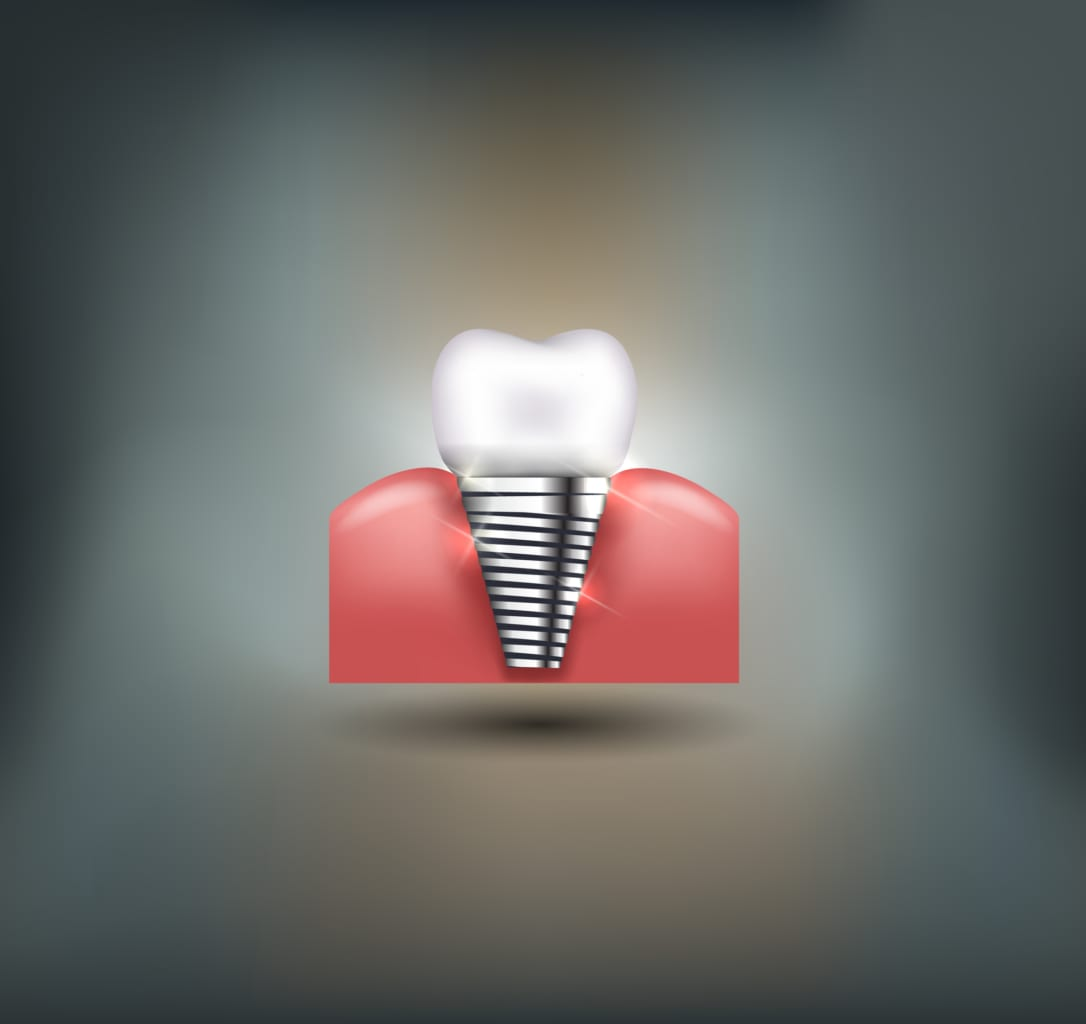 digital illustration of dental implant in bone