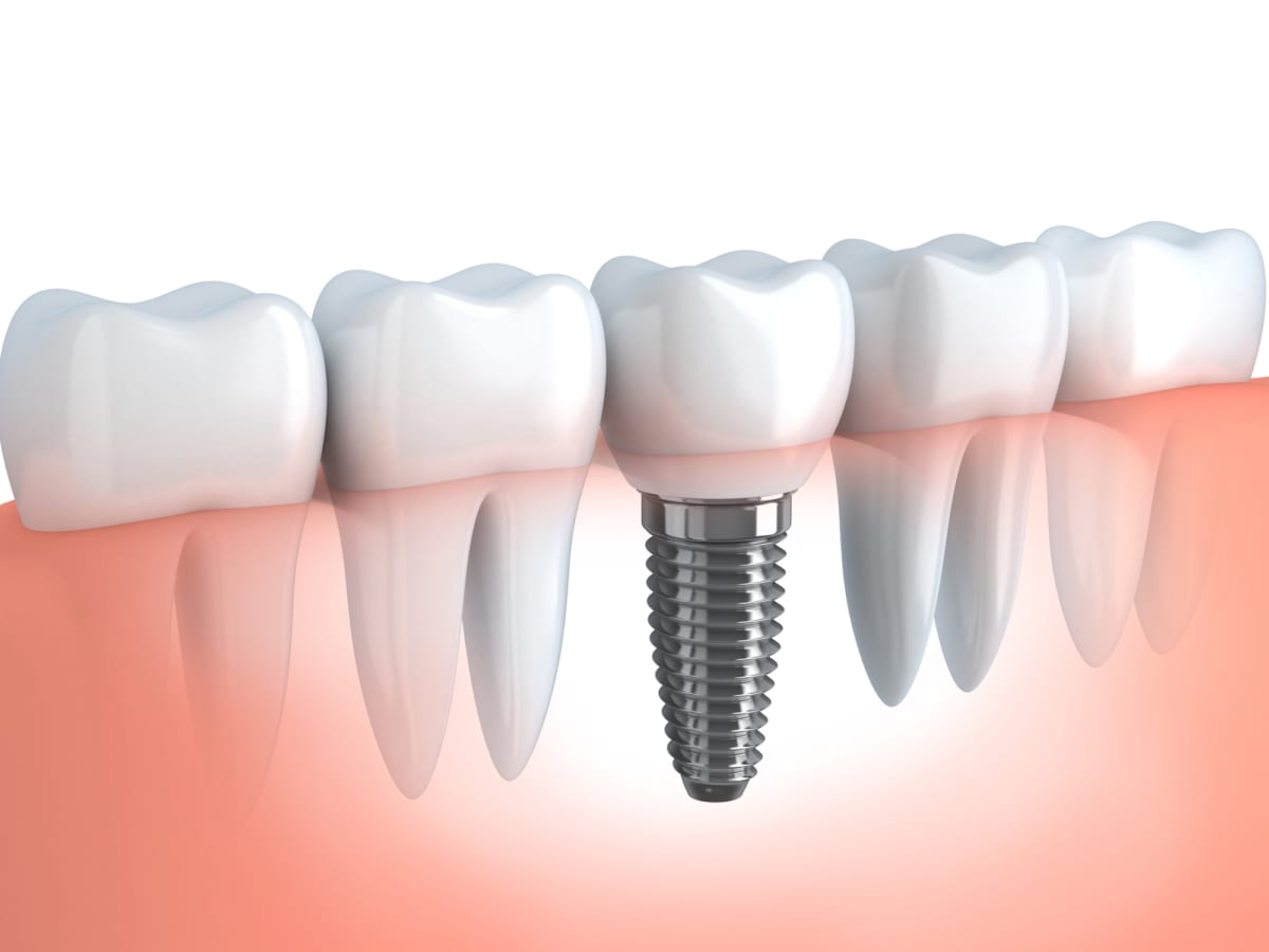 When it comes to Denver tooth replacement options, we choose dental implants!