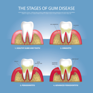 Progression of gum disease