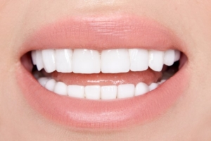 Porcelain Veneers Vs Bonding