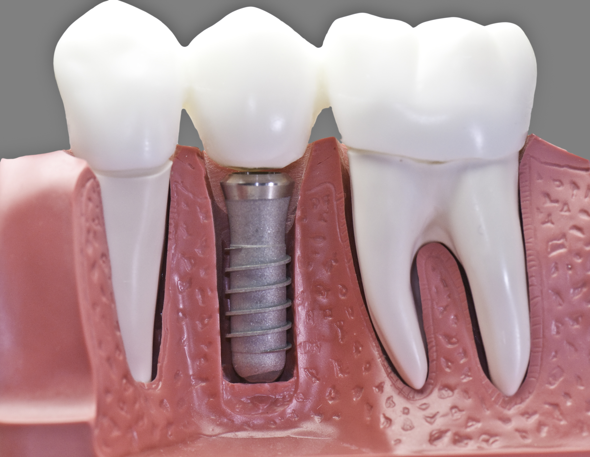 The Pros and Cons of a Dental Implant