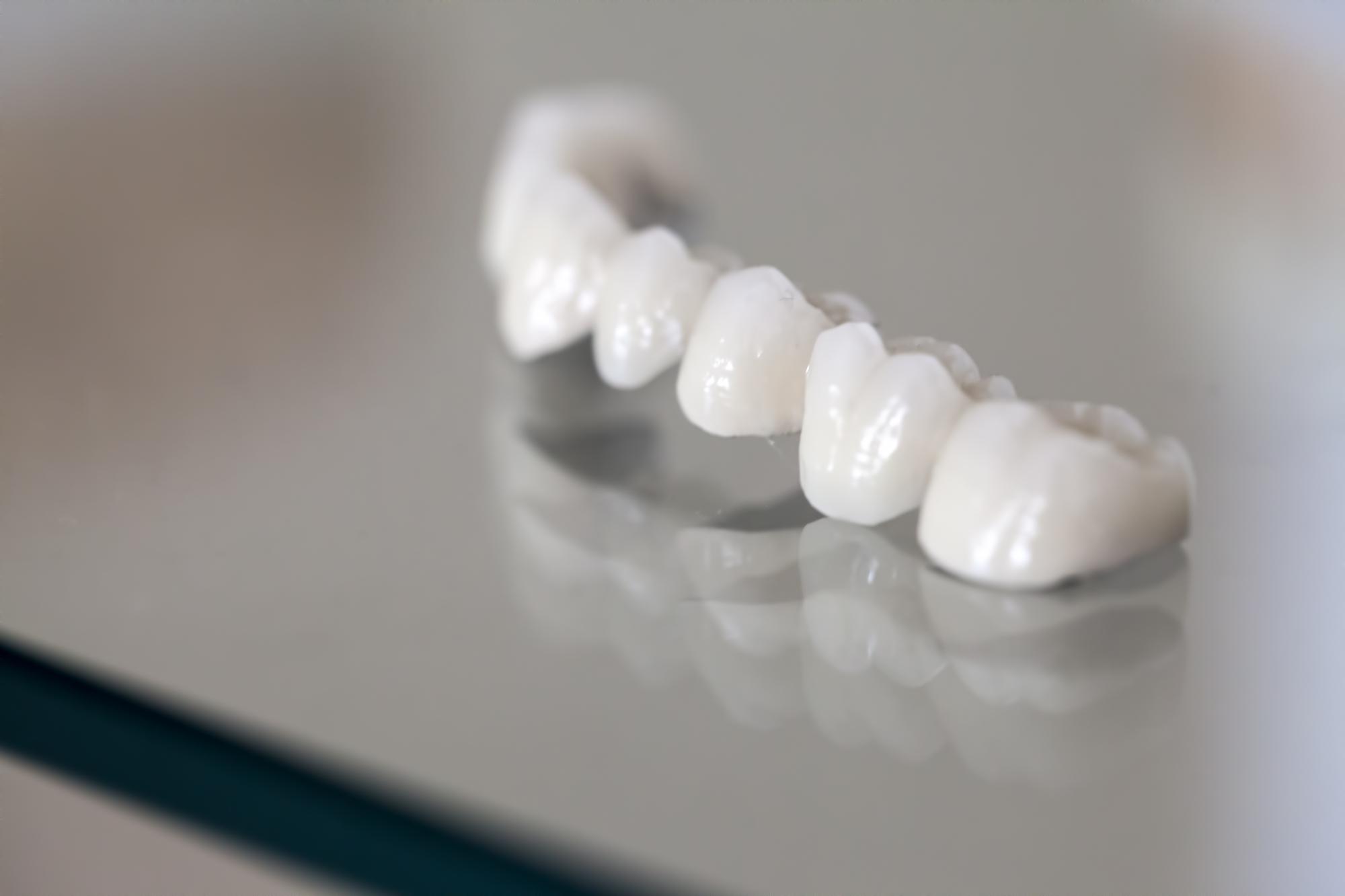 dental bridge on table