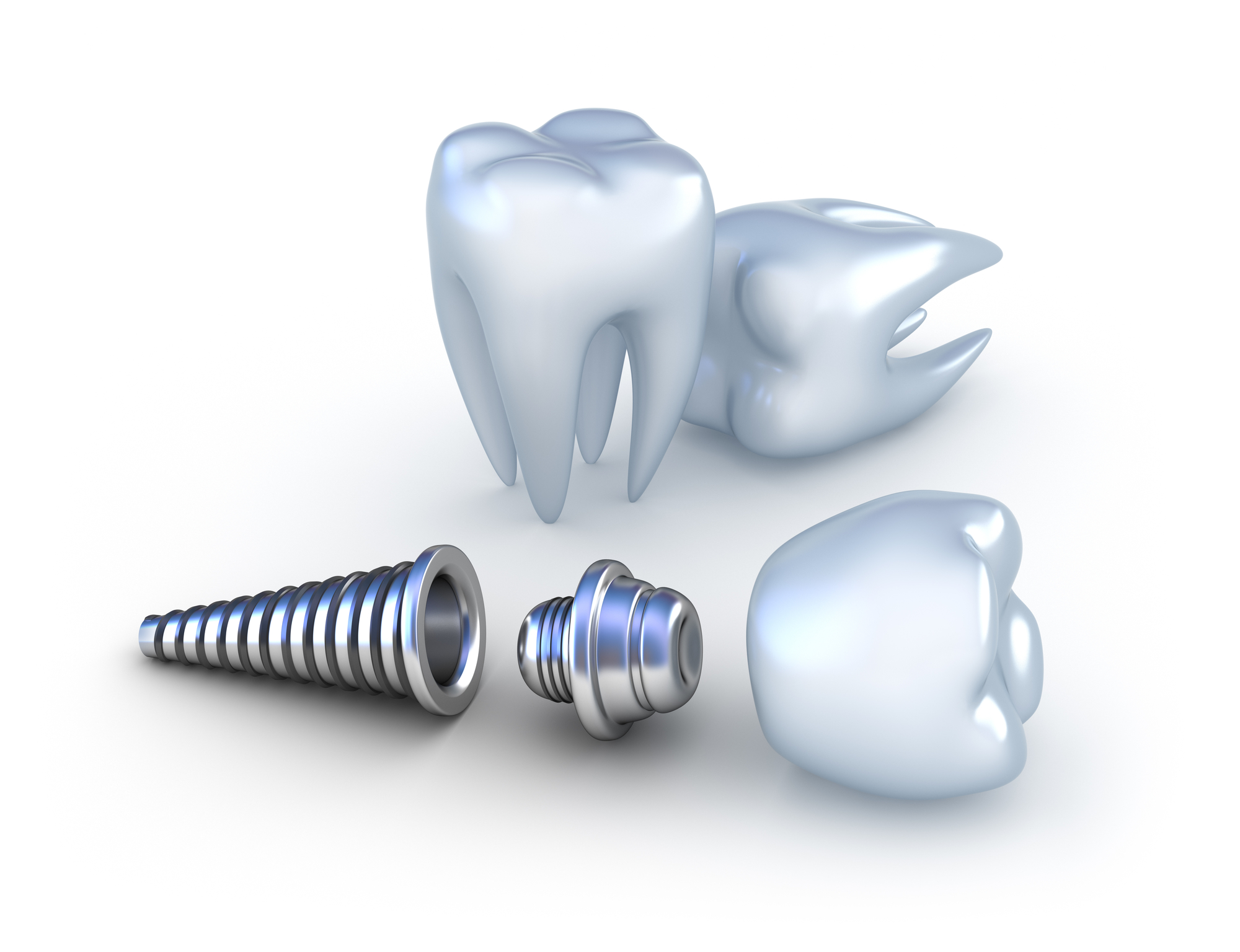 animated dental implant