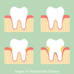 illustration stages of gum disease